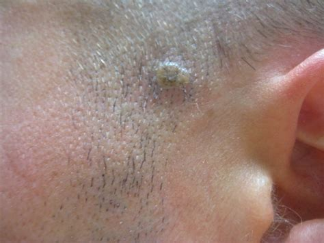 white mole or wart picture 7