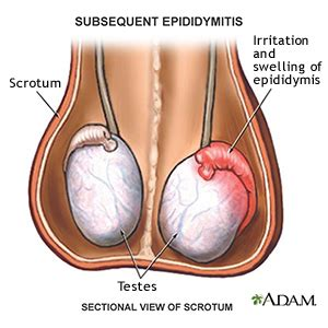 Epididymitis a urethral picture 5
