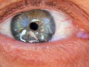 floaters in eye looks like smoke or fluid picture 8