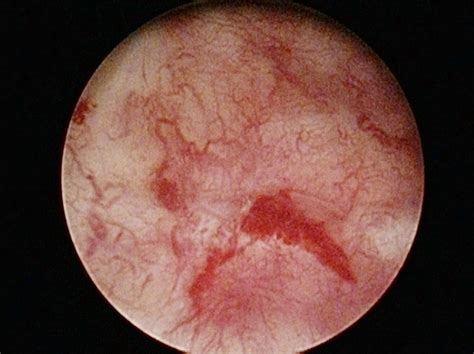 cystoscope bladder pictures picture 11