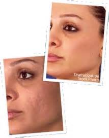 how buy revitol face scar cream in pakistan picture 7