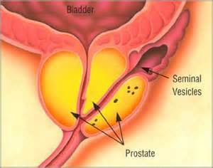 who can give prostate exam picture 2
