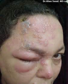 herpes zoster ophthalmicus com picture 1