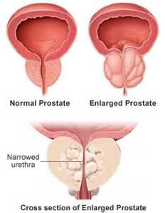 Purpose of the prostate picture 5