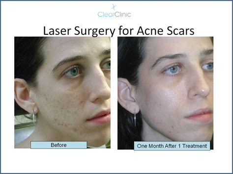 co2 laser for acne scars picture 13