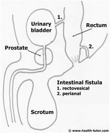 fistula connecting the bladder to the colon picture 2