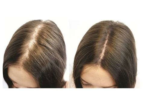 biotin and hair loss picture 5