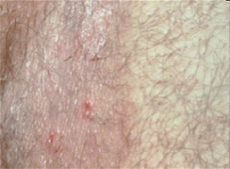 gray patch ringworm pictures picture 5