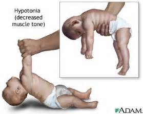 low muscle tone and autism picture 13