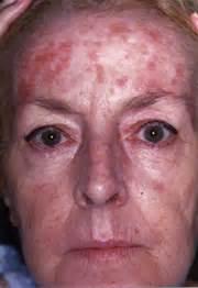 skin under balck light sun damage picture 6