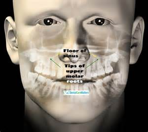 does sinus infection cause face and teeth pain picture 3