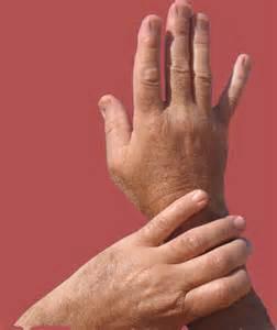 rheumatoid arthritis pain relief picture 10