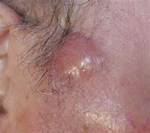 b cell lymphoma symptoms picture 2