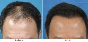 hair regrowth for men india picture 3