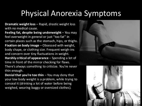 pro anorexia weight loss picture 1