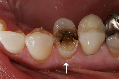 fractured teeth picture 3