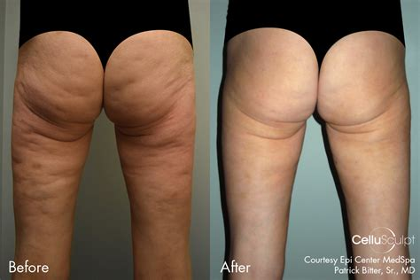 fat cellulite pictures picture 1
