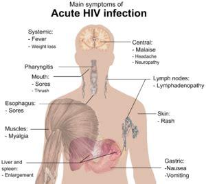 mga sintomas ng my hiv picture 2