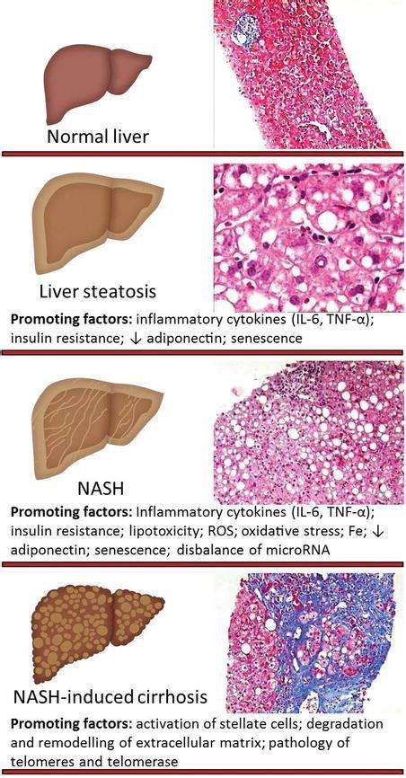 white h liver picture 1