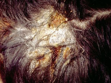 yeast on the scalp picture 7