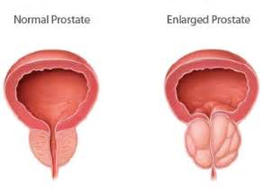 homeopathic remedies after prostate removal picture 7