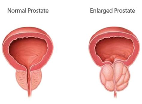 What causes an enlarged prostate picture 1