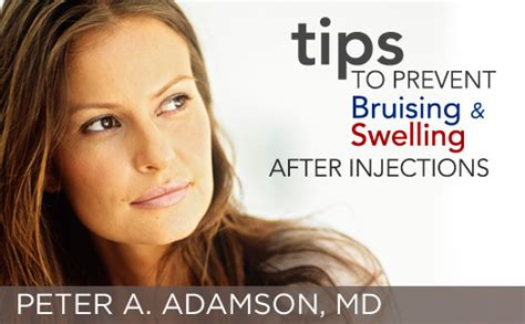 stop swelling from lip injections picture 17