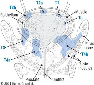 aggressive bladder cancer picture 3