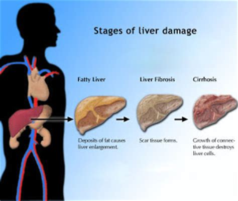 what causes sclerosis of the liver picture 16
