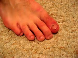 is toe fungus unhealthy picture 11