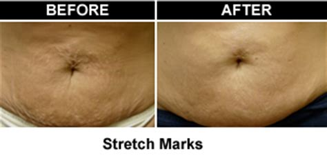 will a tan help stretch marks picture 11