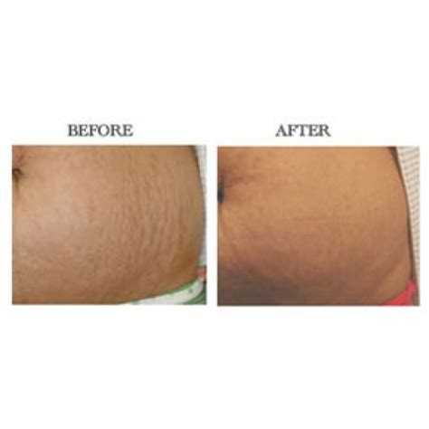 fraxel stretch mark remover pics picture 11