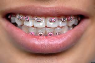 all kinds of h grillz and i want picture 7