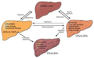 stages of liver cirrhosis picture 3
