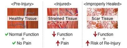 caring for a severely strained muscle picture 15