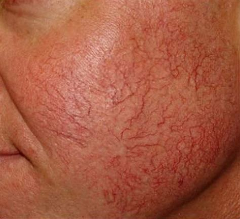 Acne marks picture 17