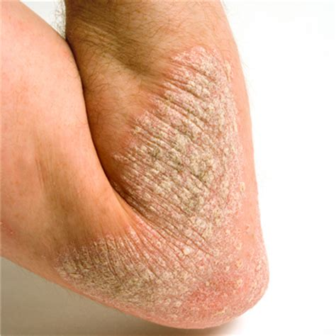 cause of dry skin picture 10