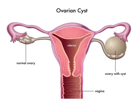 cramps in lower bowel picture 9