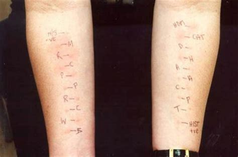 allergy skin test picture 10