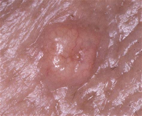 ano po ang gamot sa cancer ng cervix picture 10