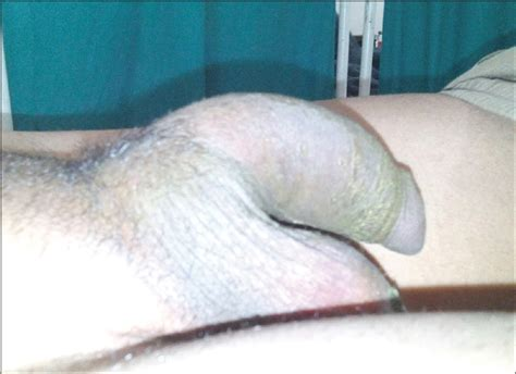 small penile syndrome pictures picture 2