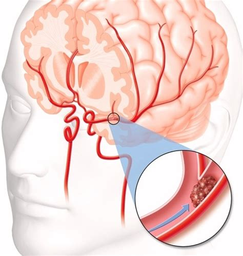 causes of blood clot in brain picture 11