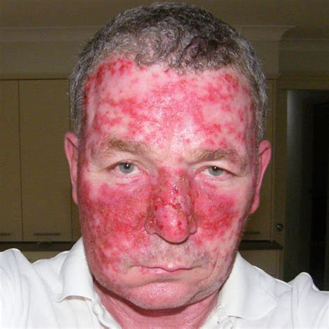 stages of skin cancer picture 10