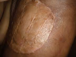alternative skin cancer ointment picture 10