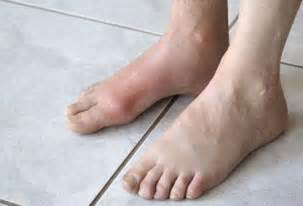 inflamation of big toe joint picture 1