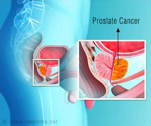 Can prostate cancer people have picture 14
