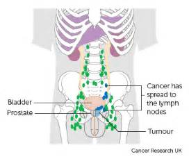 treatment for colon cancer if spread to one lymph node picture 9