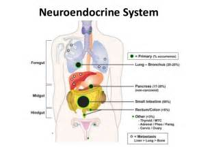 neuroendocrine tumor of gastrointestinal tract ppt picture 1