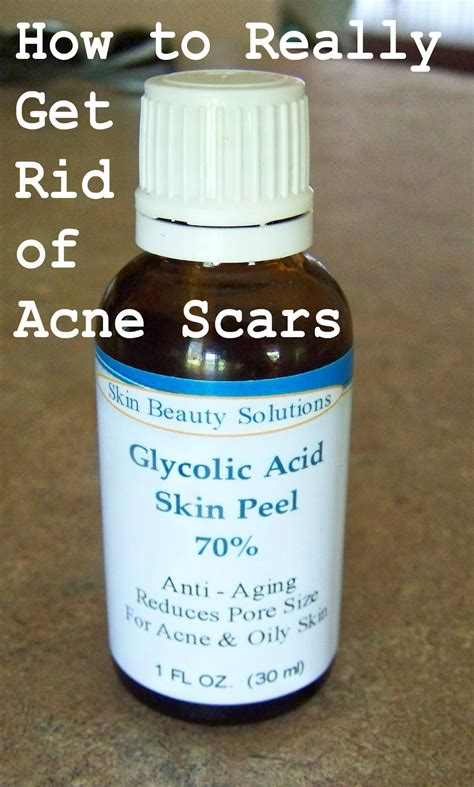 glycolic acid acne picture 11