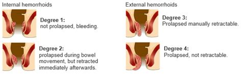removal of external hemorrhoids picture 9